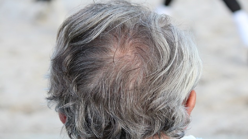 Scoperte le cellule che garantiscono la crescita dei capelli