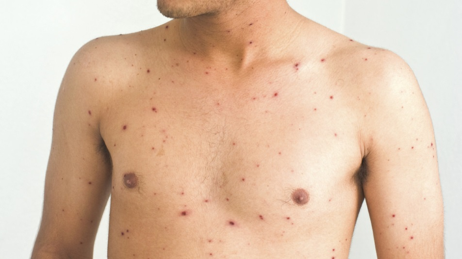 Morbillo: i numeri del contagio