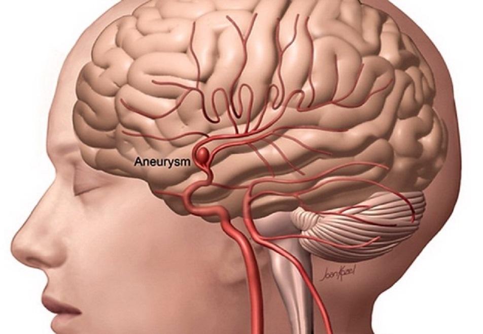 Aneurisma (Fonte: medicinaonline.com)