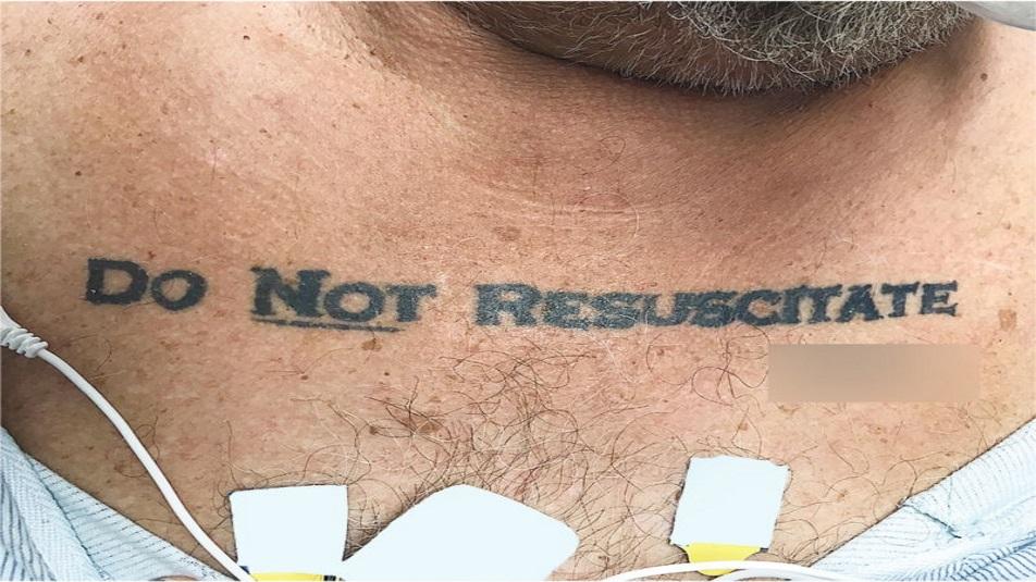 bioetica: americano esprime le sue ultime volontà tramite un tatuaggio