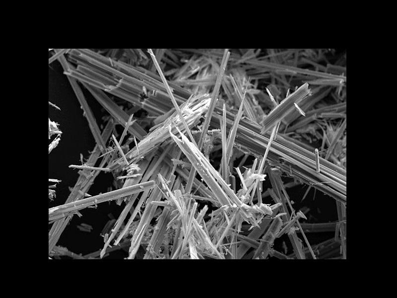 Amianto la fibra killer