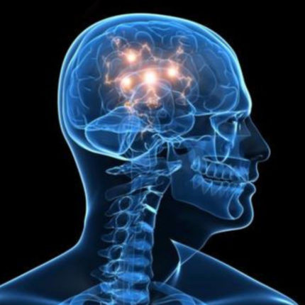 Studio sull'Epilessia- scoperti 11 nuovi geni