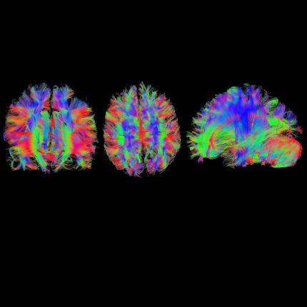 Autismo: un futuro con le cellule Staminali