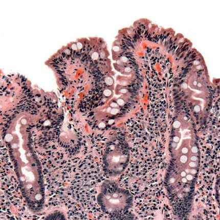 Celiachia nuove scoperte foto