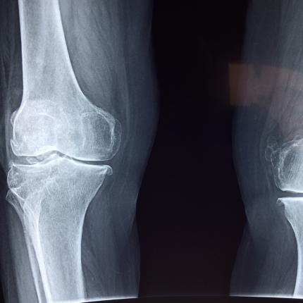 Dormire poco causa osteoporosi
