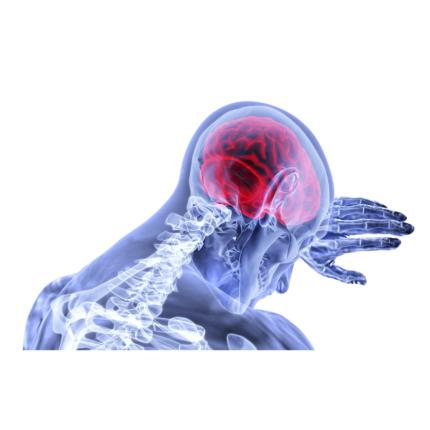 Gravi disturbi cerebrali nelle persone con il Coronavirus