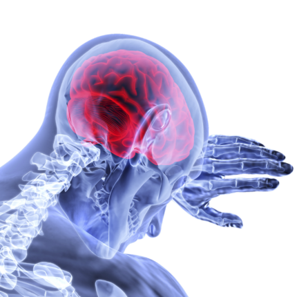 aneurisma cerebrale artificiale
